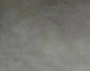 武汉308激光治白斑哪里最好?武汉为什么白癜风患者毛发会变白呢?