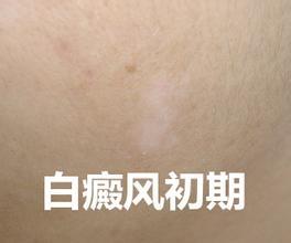 武汉环亚白癜风医院环亚高明