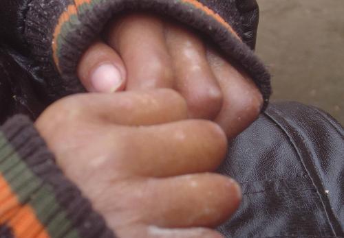 武汉怎样做可以做到有针对性的治疗和预防白癜风?