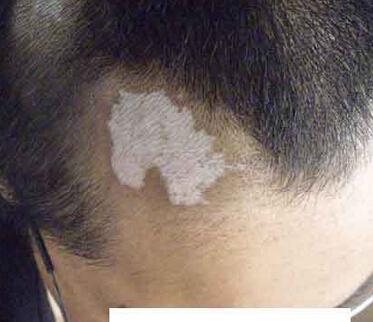 武汉白癜风医院解答年轻人白癜风症状危害