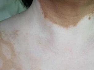 武汉治疗白癜风哪家好?武汉皮肤出现白癜风怎样治疗比较好?