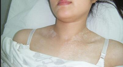 武汉脸部白癜风早期症状有哪些