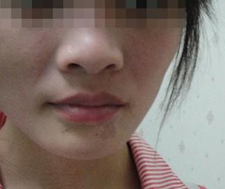 武汉哪些症状可以判定白斑就是白癜风