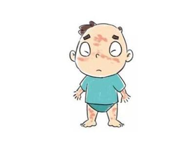 武汉脸部白癜风的症状表现有哪些