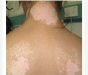 武汉白斑医院讲解在白癜风早期有哪些明显的症状呢