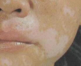 武汉治疗白癜风哪里较好?武汉如何医治脸部白癜风呢?