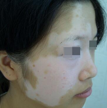 武汉女性患上白癜风后该如何护理呢?