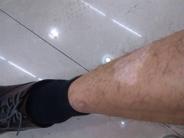武汉如何确认腿部的白斑是白癜风呢?