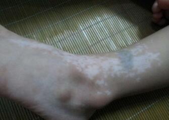 武汉脚部白癜风有哪些治疗方法?