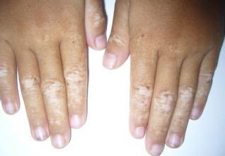武汉手指皮肤变白是白癜风吗?